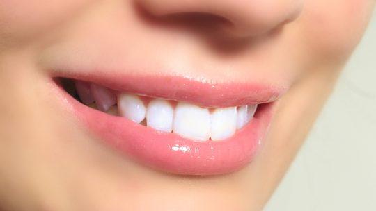 أهم ما يجب معرفته عن تبييض الأسنان بالزوم