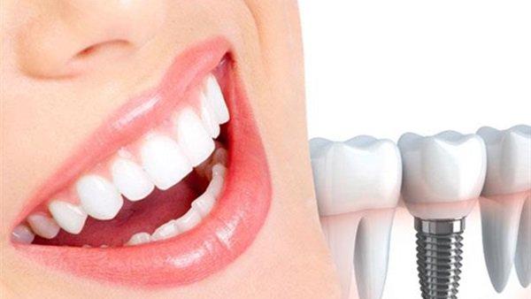 لماذا قد تلجأ لعمليات تجميل الأسنان؟